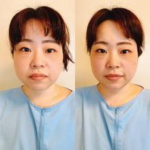 安眠道鍼療院の美容鍼が人気の理由