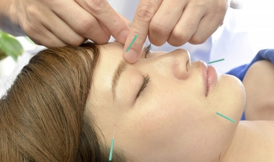 美容鍼による小顔矯正施術